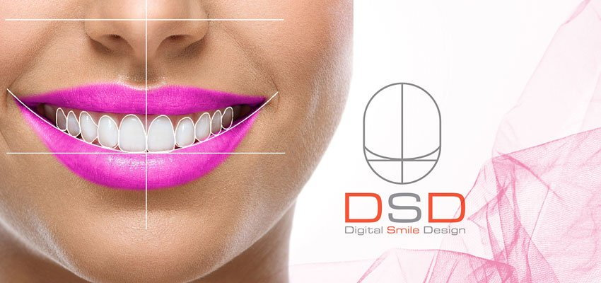 dsd nova clinic - Dental Clinic Dubai